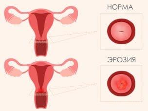 Симптомы, причины и лечение эрозии шейки матки