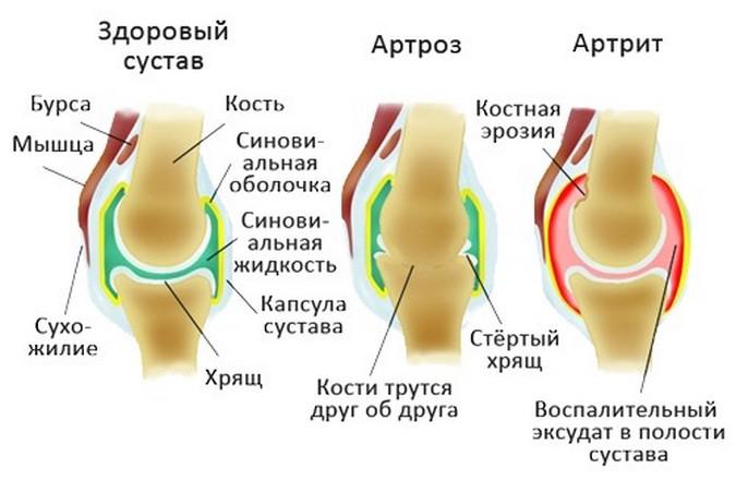 Артроз и артрит на схеме