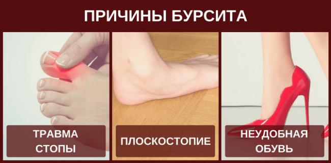 Причины бурсита большого пальца ноги