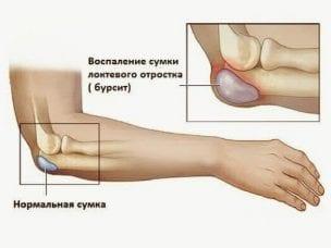 Симптомы и лечение бурсита