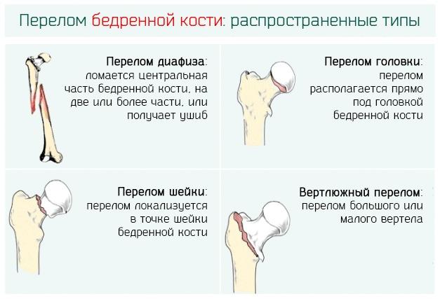 Распространенные типы перелома бедренной кости