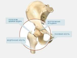 Перелом шейки бедра — симптомы травмы сустава
