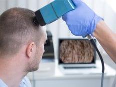 7 заболеваний кожи головы и их лечение