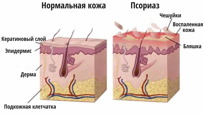 Здоровая кожа и псориаз