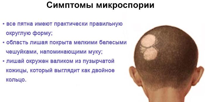 Симптомы микроспории