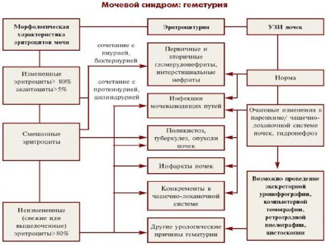 Симптомы, причины и диагностика гематурии