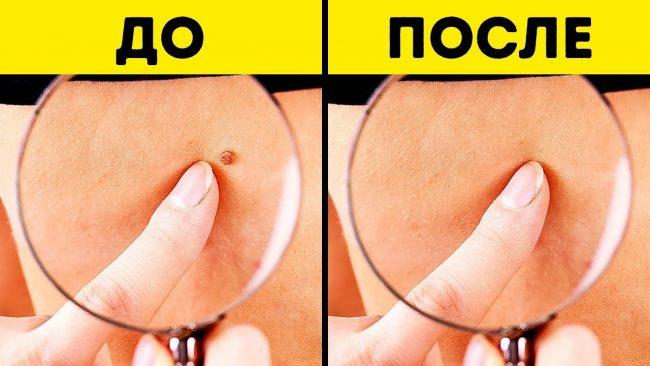 Папиллома до и после аппаратного удаления