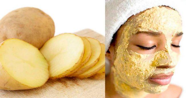 Картофельная маска от отеков на лице