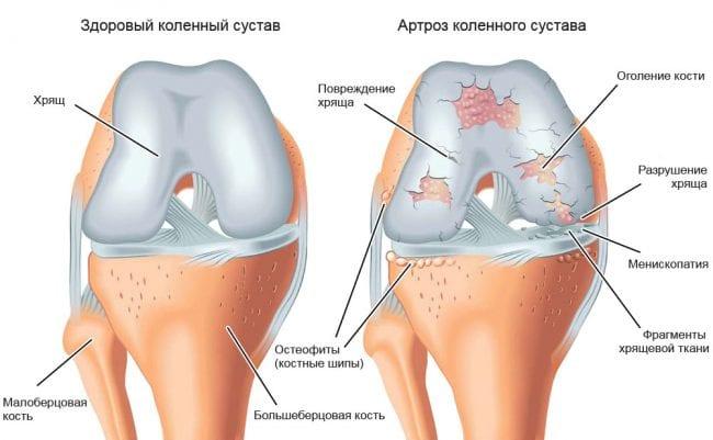 Артроз коленного сустава на схеме